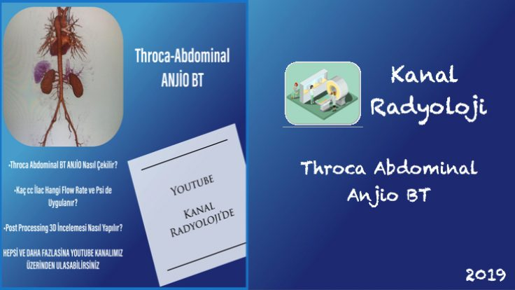 Throca – Abdominal Anjio BT